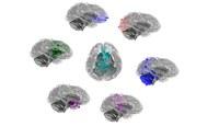 Chimpancés y humanos comparten cerebros adaptables con patrones evolutivos similares